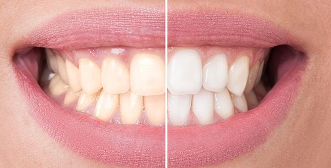 「歯のホワイトニング治療の実体験と白くなったあとに気を付けたい食べ物」のアイキャッチ画像
